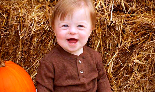 John-David-down-syndrome baby viral abc