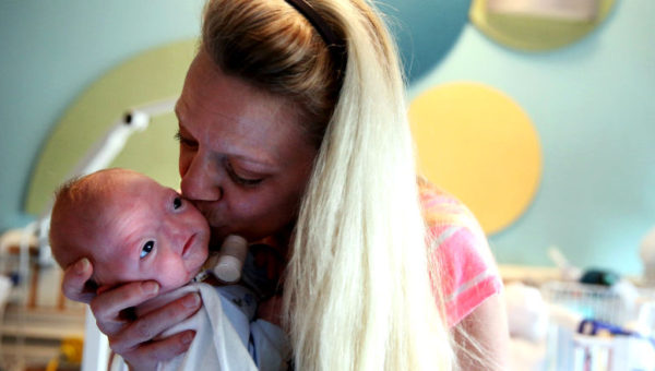 Born Without a Nose, Baby Eli Thompson Fights to Live Normal