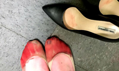 Waitress' Bloodied Feet after Being Forced to Wear Heels Goes Viral